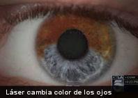 Insólito: procedimiento láser cambia color de los ojos de marrón a azul