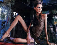 Agencias suecas reclutan pacientes anoréxicas como modelos