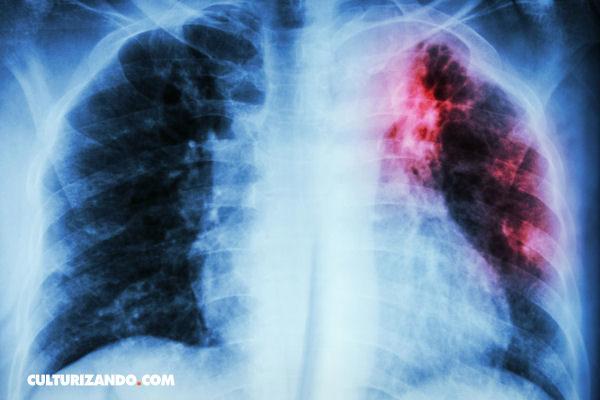 Lo que debes saber sobre la Tuberculosis
