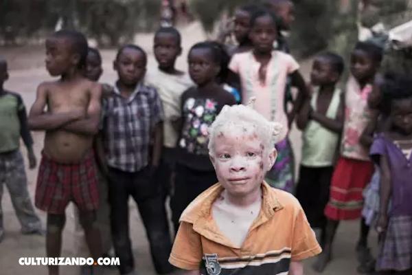 La macabra realidad tras la cacería de albinos en Tanzania