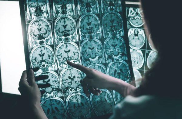 Alzhéimer: cada vez más evidencias apuntan al virus del herpes como posible causa