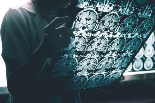 Nueva herramienta para ayudar a la detección precoz del alzhéimer