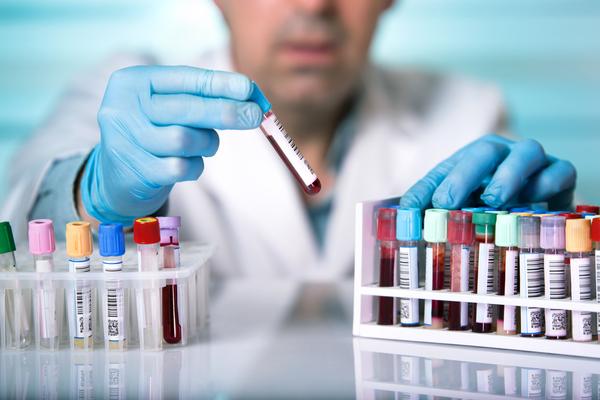 ONUSIDA esperanzado por la posible cura de un paciente con VIH