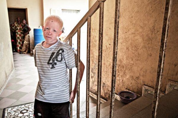 Ser una persona con albinismo no es igual en Europa que en África