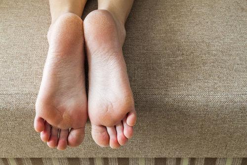 Los callos son buenos para la planta del pie si andas descalzo