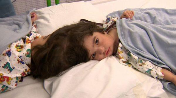 Safa y Marwa: La cirugía pionera que logró separar a dos siamesas en Londres