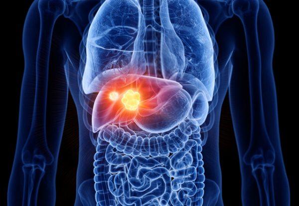 ¿Cómo saber qué personas con hígado graso tienen mayor riesgo de padecer cáncer hepático?